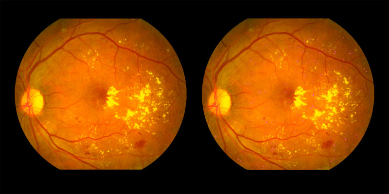 Two photos of human eye scan where signs of microaneurysms identified by AIRA are shown in pink dots