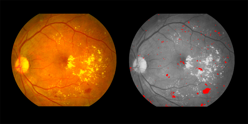 Two photos of human eye scan where haemorrhages identified by AIRA are shown in red