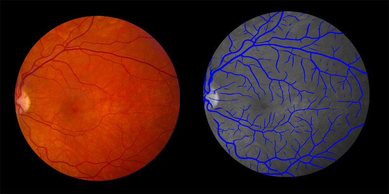 Two photos of human eye scan where veins identified by AIRA are shown in blue